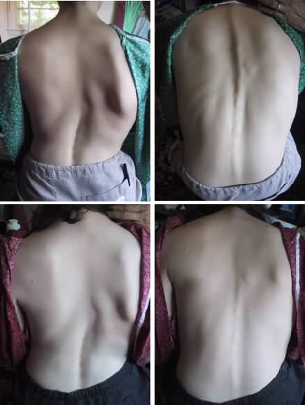 Healing Severe Scoliosis