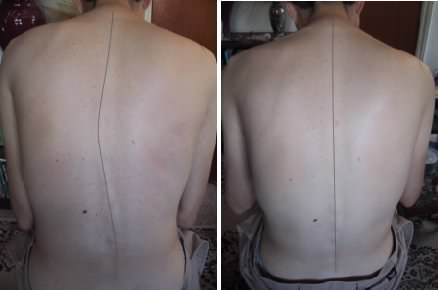 Reversing Scoliosis Before & After
